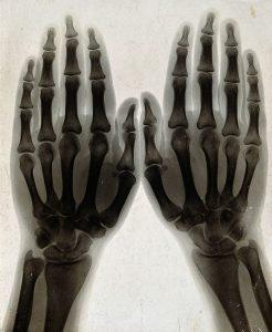 Donald Unger a fait craqué sa main gauche pendant 50 ans... elle n'a rien